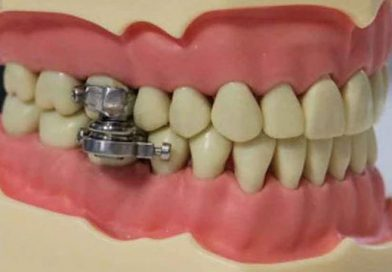 Dispositivo Dental para Bajar de Peso